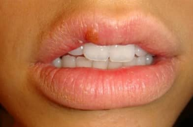 Why Do I Keep Getting Cold Sores in the Same Spot Every Time?