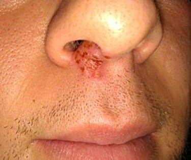 Cold Sores Below the Nose