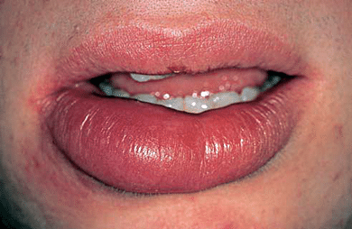 How to Reduce Cold Sore Swelling Quickly