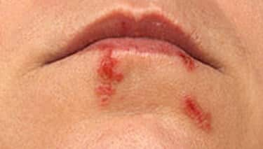 How are cold sores spread to other body parts and people?