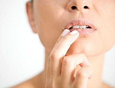 Keep Cold Sores Moist or Dry
